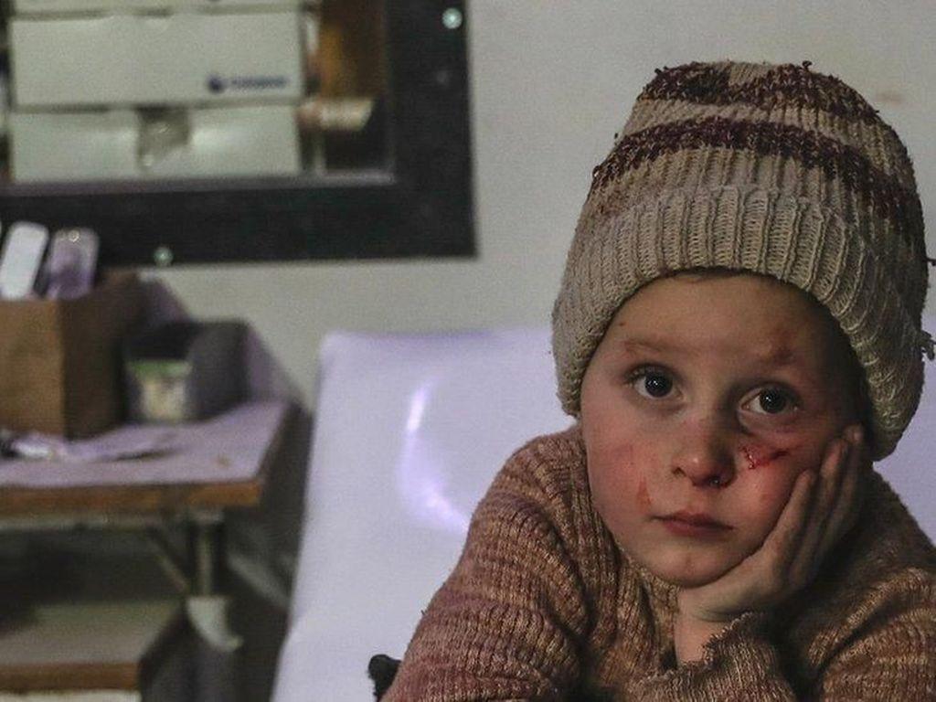 Situasi Lebih dari Kritis, Warga Ghouta Timur Melarikan Diri