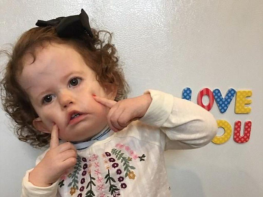 Idap Penyakit Saraf Langka, Bayi Ini Butuh Rp 1,7 M untuk Bisa Senyum