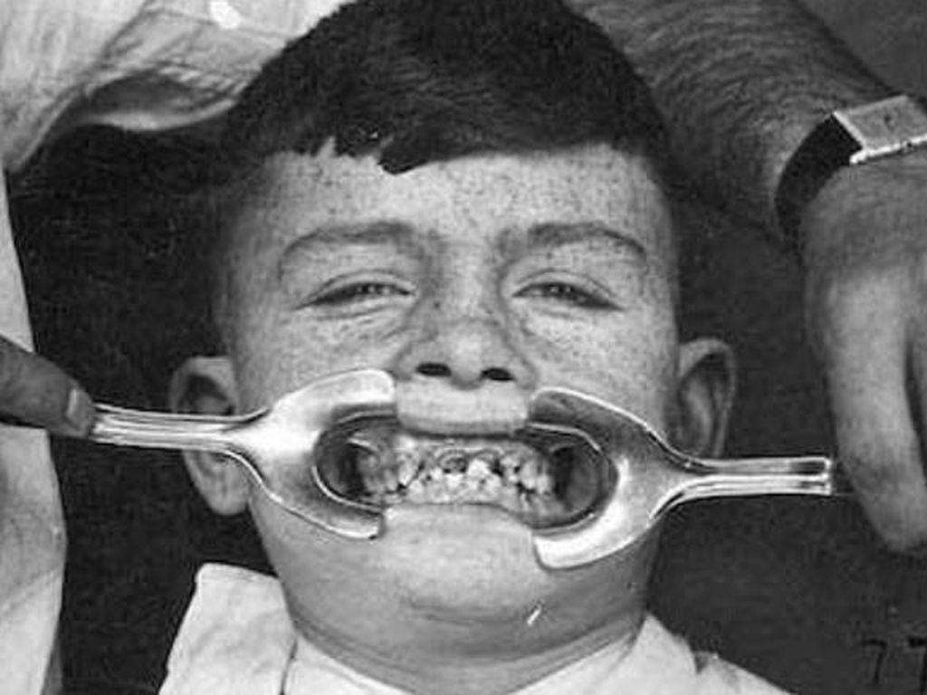 Pantas Banyak Orang Takut ke Dokter Gigi, Begini Toh Alatnya Zaman Dahulu