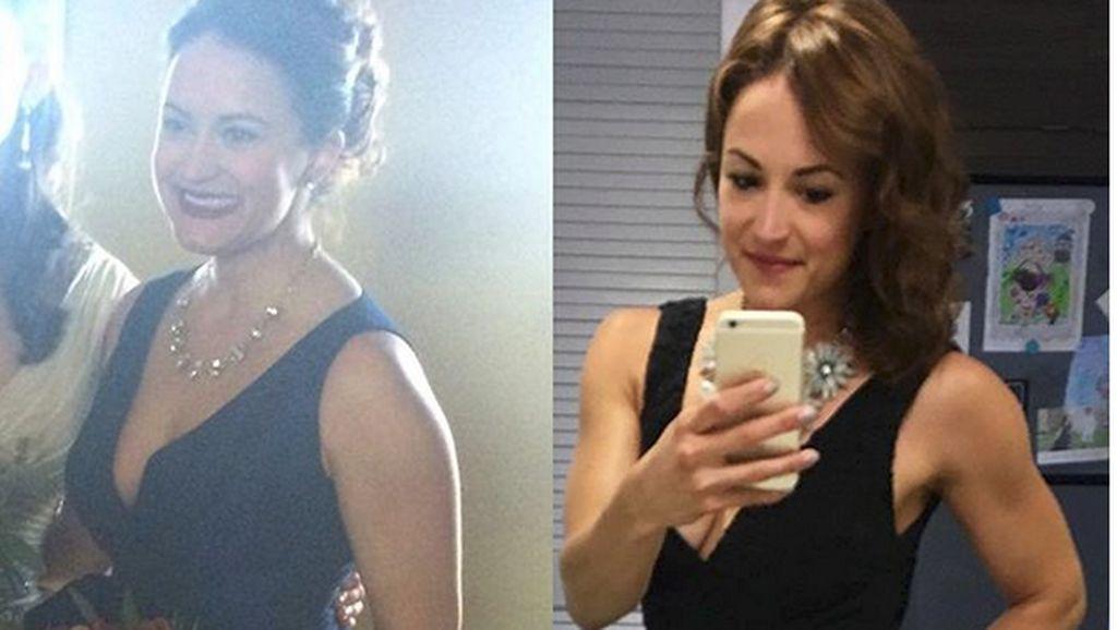Wanita Ini Buktikan Pengidap Anoreksia Tak Melulu Kurus Kering