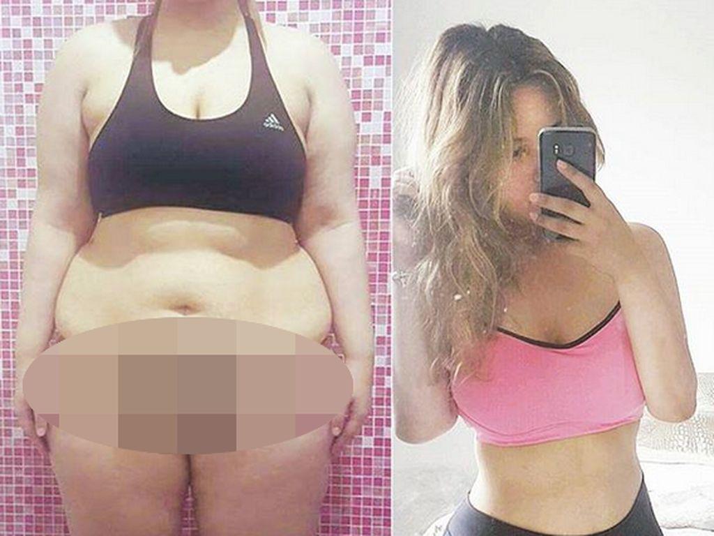 Gagal Jaga Berat Pasca Diet Keto, Si Cantik Ini Pangkas Lambungnya