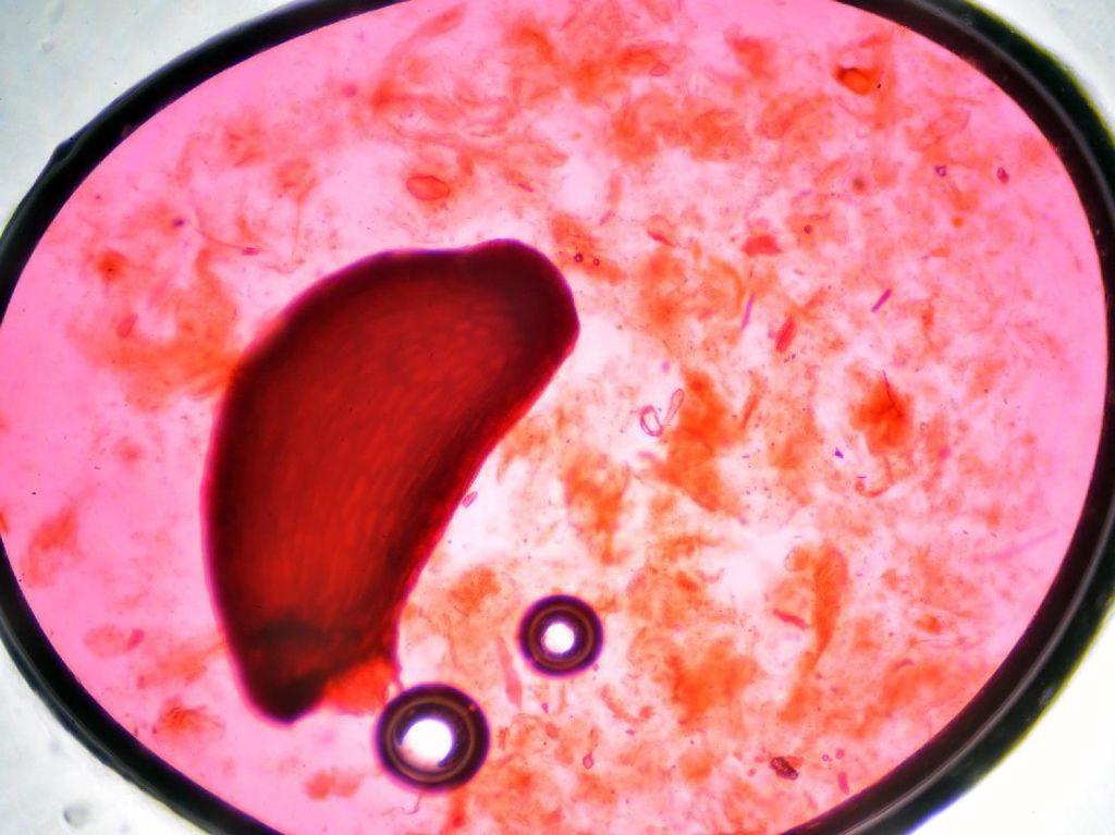 Foto-Foto Hasil Bidikan Mikroskop, Bisa Tebak Benda Apa?