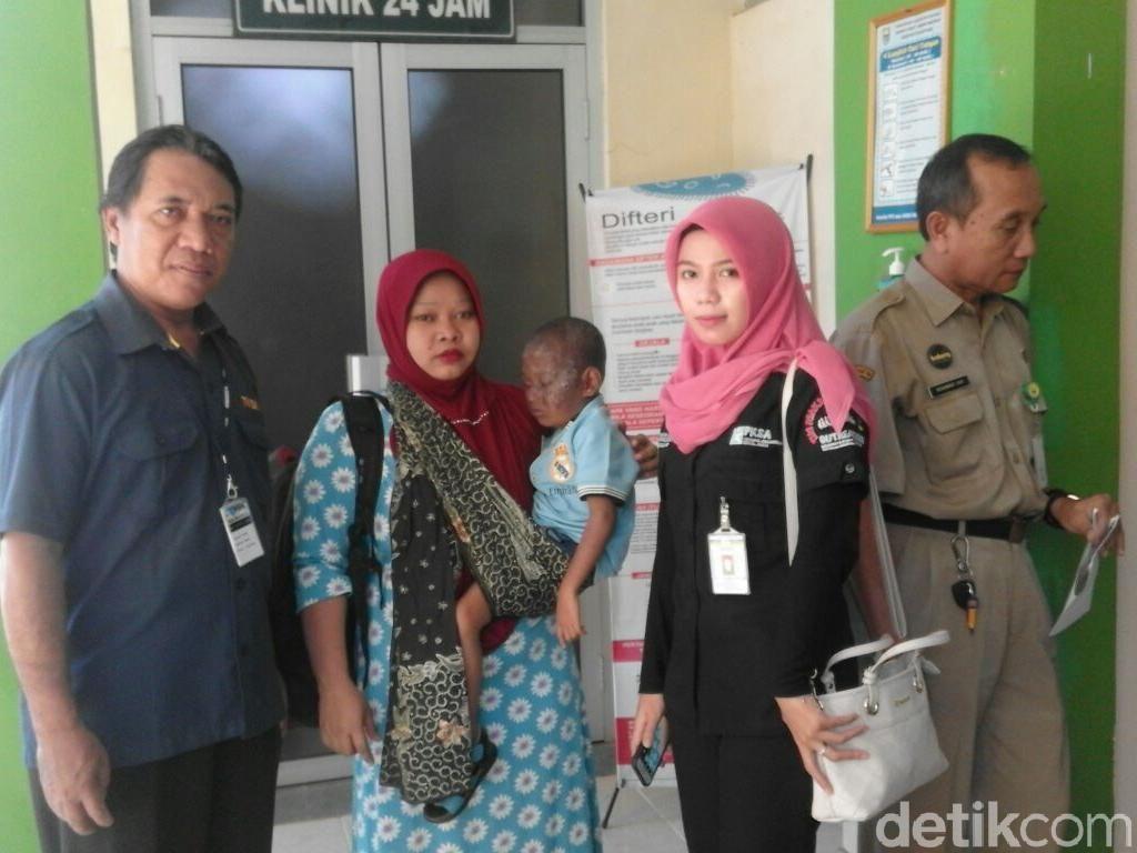 Bocah Penderita Kanker Kulit dan Tumor Mata Dirujuk ke Semarang