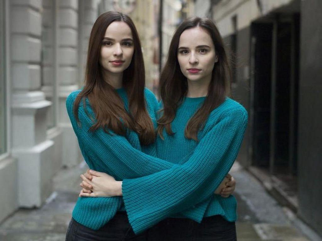 Kembar Identik: Serupa Tapi Tak Sama, Bisa Temukan Bedanya?