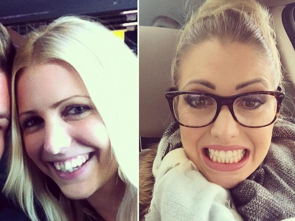 Transformasi Para Pemakai Kawat Gigi, Senyum Jadi Lebih Menarik