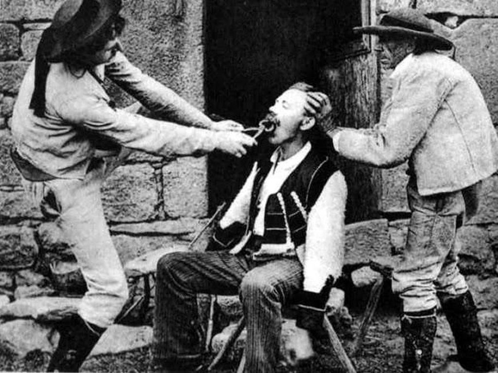 Kumpulan Foto Betapa Sadisnya Cabut Gigi pada Akhir Abad ke-19