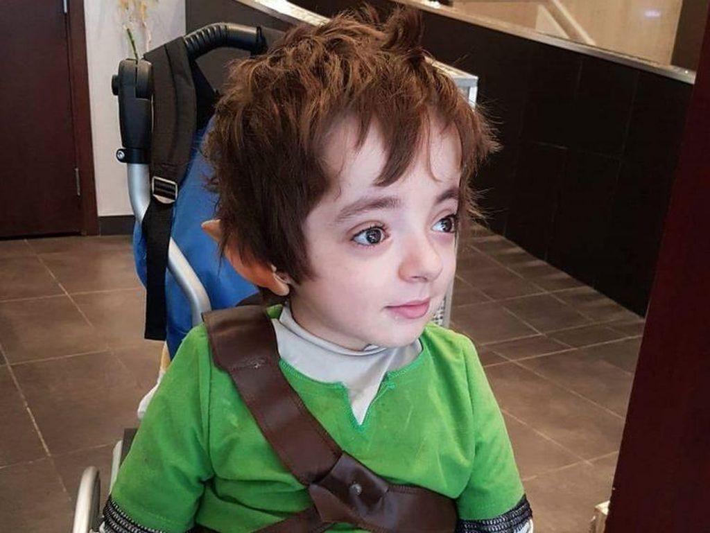 Kisah Reiko, Bocah 6 Tahun yang Patah Tulang 500 Kali Sejak Lahir