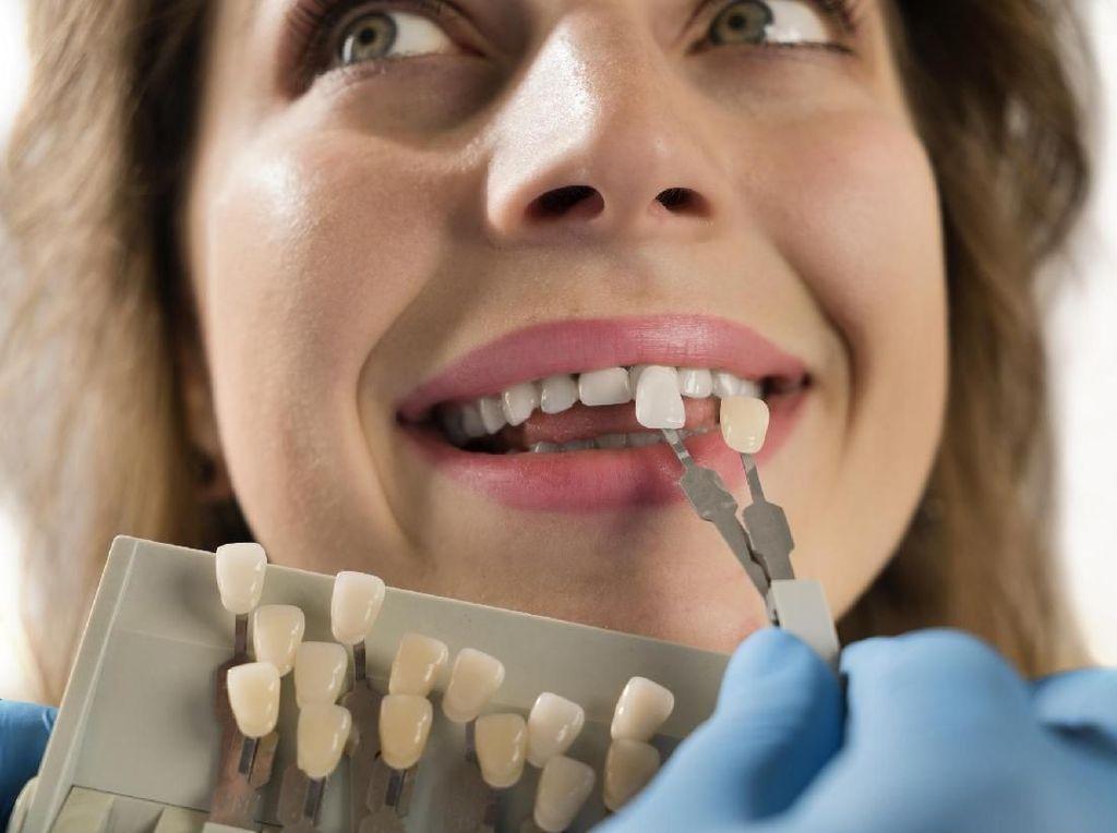 Pasang Veneer Gigi Murah Tak Sebanding dengan Risiko Gagalnya