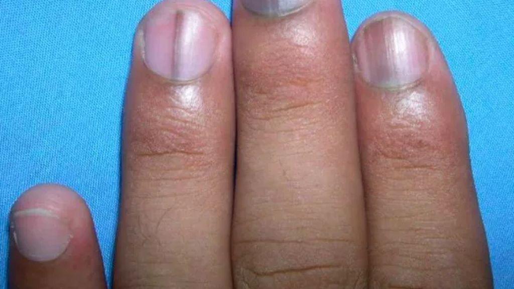 9 Contoh Tanda Penyakit yang Bisa Muncul di Kuku