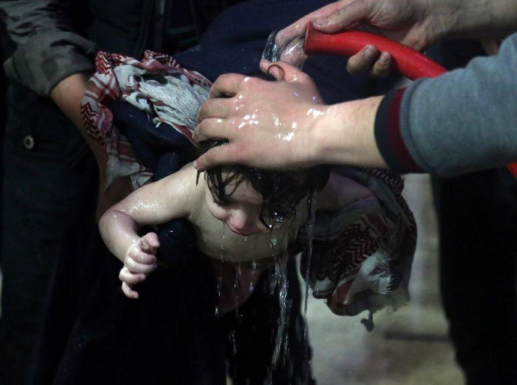 Potret Menyedihkan Anak-anak Korban Serangan Kimia di Suriah
