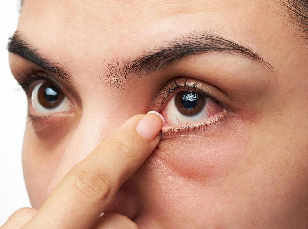 Penyakit Misterius Membuat Mata Remaja Ini Bengkak Parah dan Buta