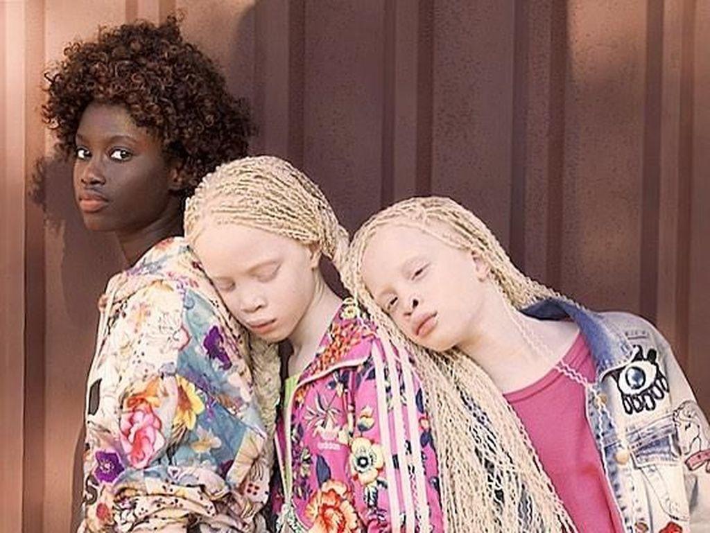 Cantiknya Rare Flowers Lara dan Mara, Kembar Albino Langka