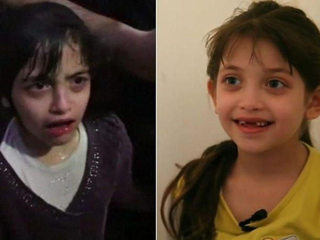 Cerita Pilu Anak di Suriah Berjuang saat Kena Serangan Kimia