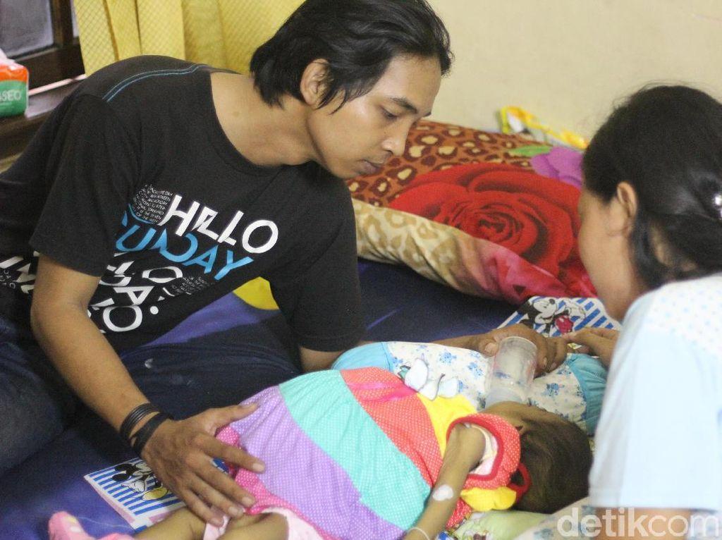Cairan 3 Liter Dikeluarkan dari Perut Bayi yang Membengkak di Surabaya