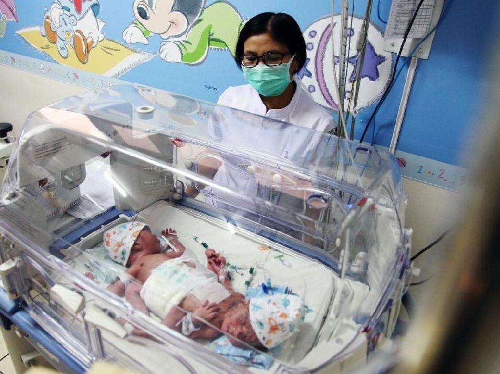 Kepasrahan Orang Tua Bayi Kembar Siam Kaki Tiga Asal Subang