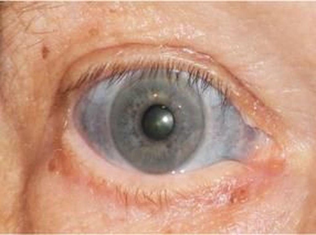 Bagian Putih Mata Pria Ini Berubah Biru Akibat Efek Samping Obat