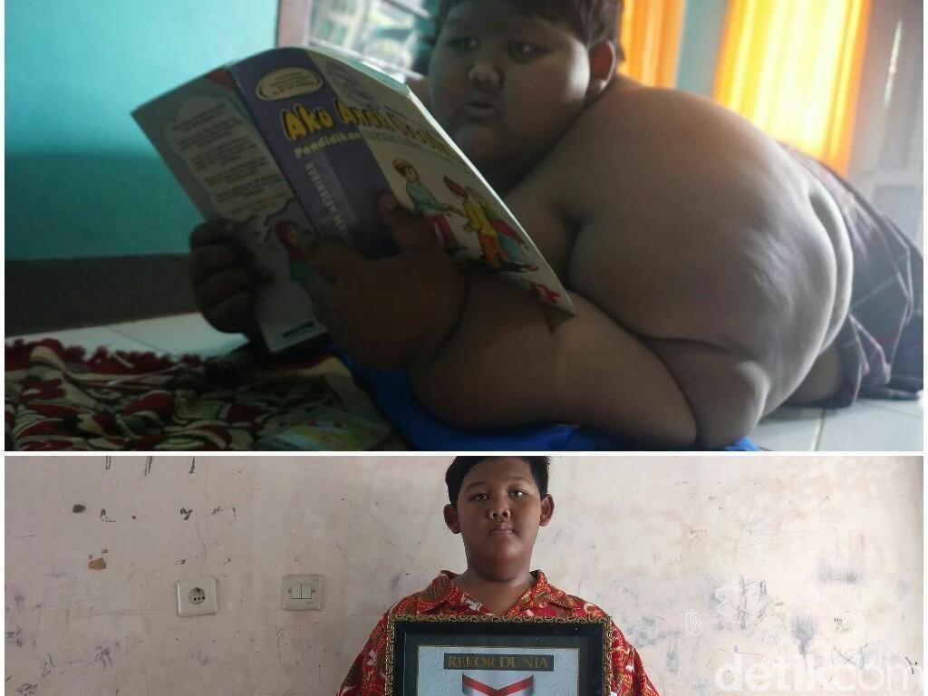 Foto: Before-After Ariya Bocah Terberat Sedunia yang Susut 80 Kg
