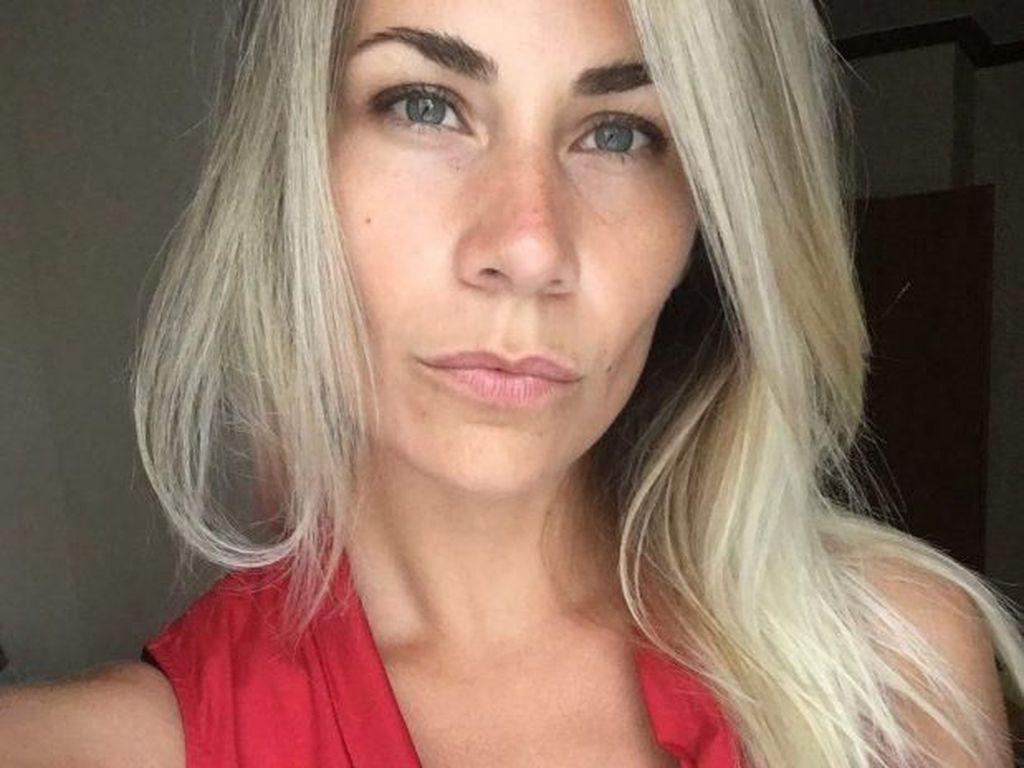 Operasi Kencangkan Payudara dan Sempat Selfie, Wanita Ini Berakhir Tragis