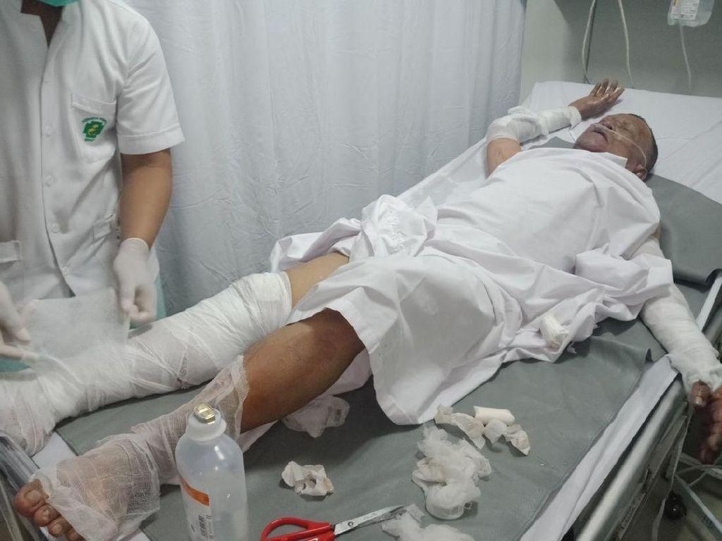 Foto: Kondisi Korban Ledakan Tabung Gas Kampung Melayu