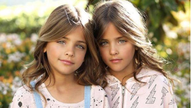 Cerita Kakak dan Adiknya yang Kembar Identik Sama-sama Jadi Model