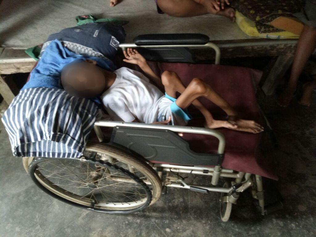 Terbaring Sejak Lahir, Remaja di Sumut Ini Butuh Bantuan