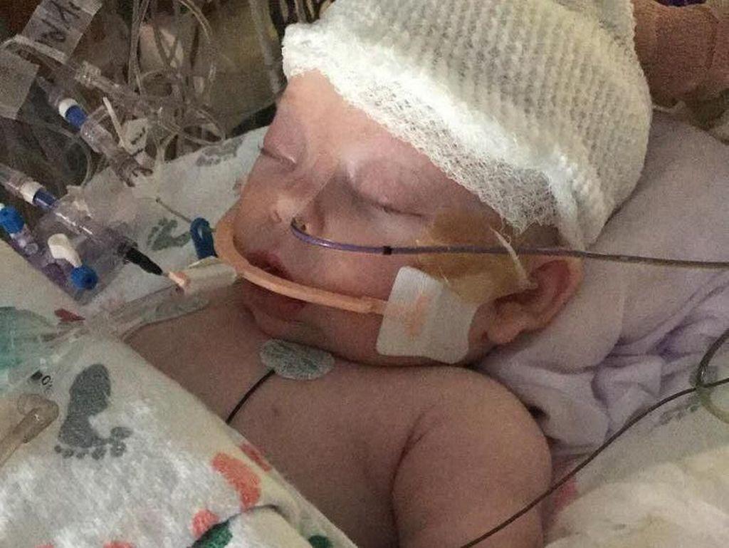 Foto: Tulang Tengkorak Bayi 7 Minggu Ini Patah Terkena Bola Sofbol