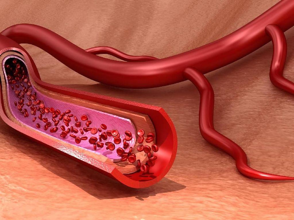 Fakta Penyakit Jantung Koroner: Ketahui Gejala dan Pengobatannya