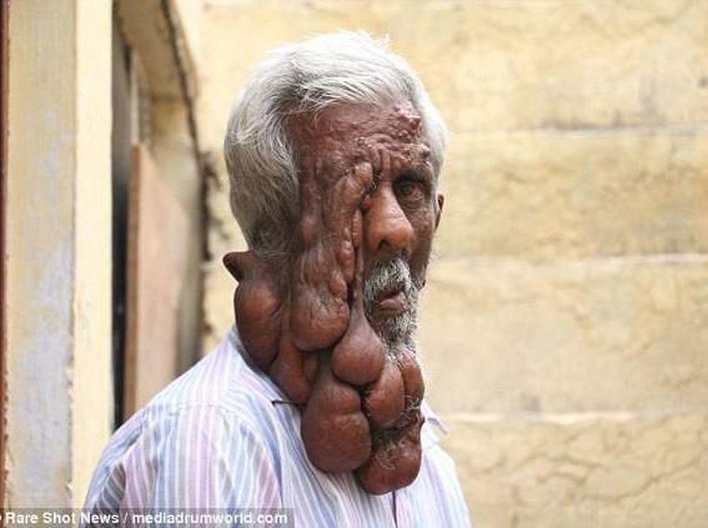 Wajahnya Meleleh, Kakek Ini Tetap Semangat Menjalani Hidup