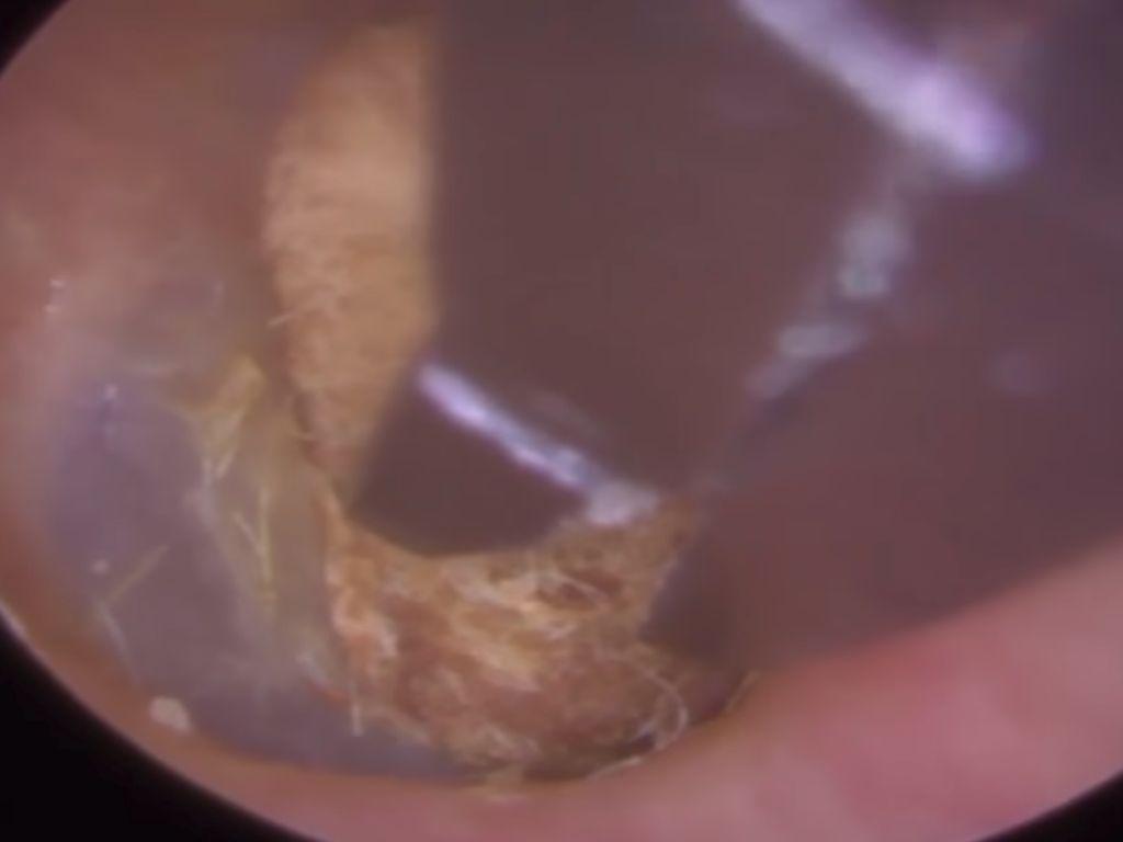Foto: Penampakan Cotton Bud yang Dua Tahun Tersangkut di Telinga