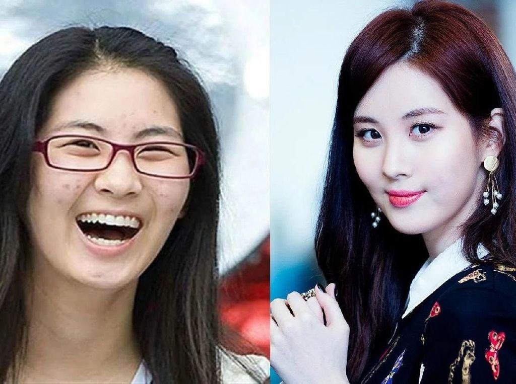 Foto: 10 Idol Korea Ini Kulit Wajahnya Pernah Rusak karena Makeup