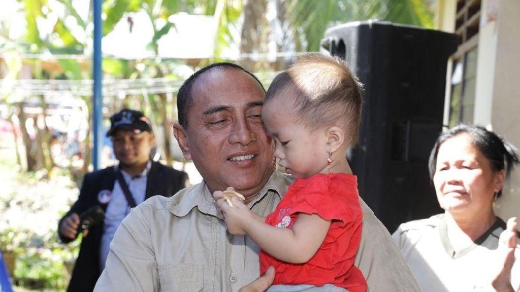 Sisi Lain Edy Rahmayadi, Gendong Anak Kecil & Cium Tunanetra