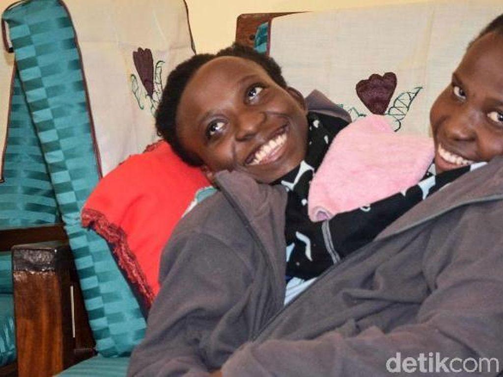 Kembar Siam Maria dan Consolata Meninggal di Usia 21 Tahun