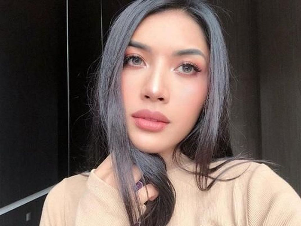 Bibir Millen Bengkak Saat Berkunjung, Aurel: Kayak Hantu Blau!