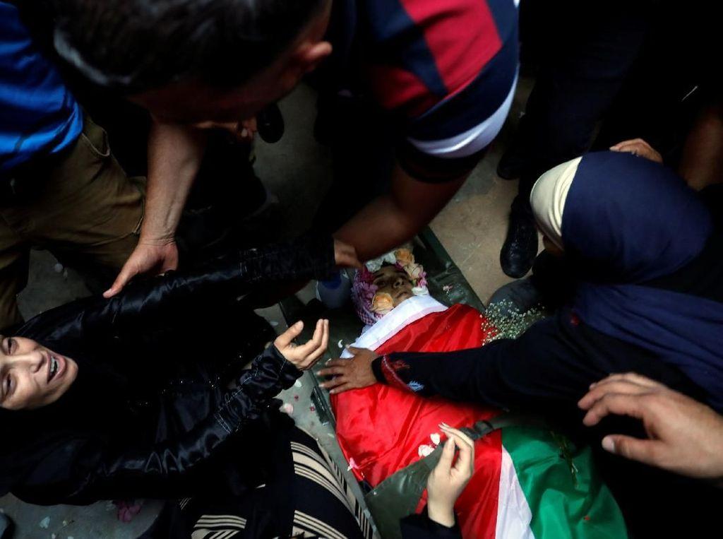Peluru Tajam Tentara Israel Tebus Dada Ezz El-Deen