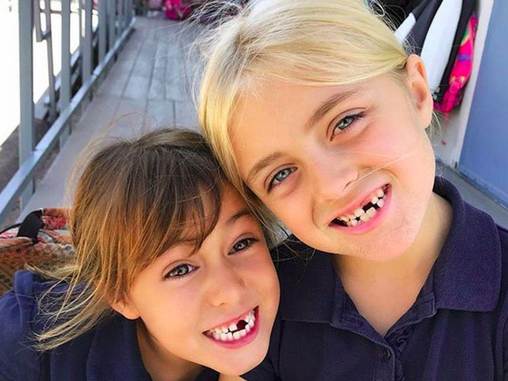 No Teeth No Cry! Anak-anak Ini Tetap Happy Meski Ompong