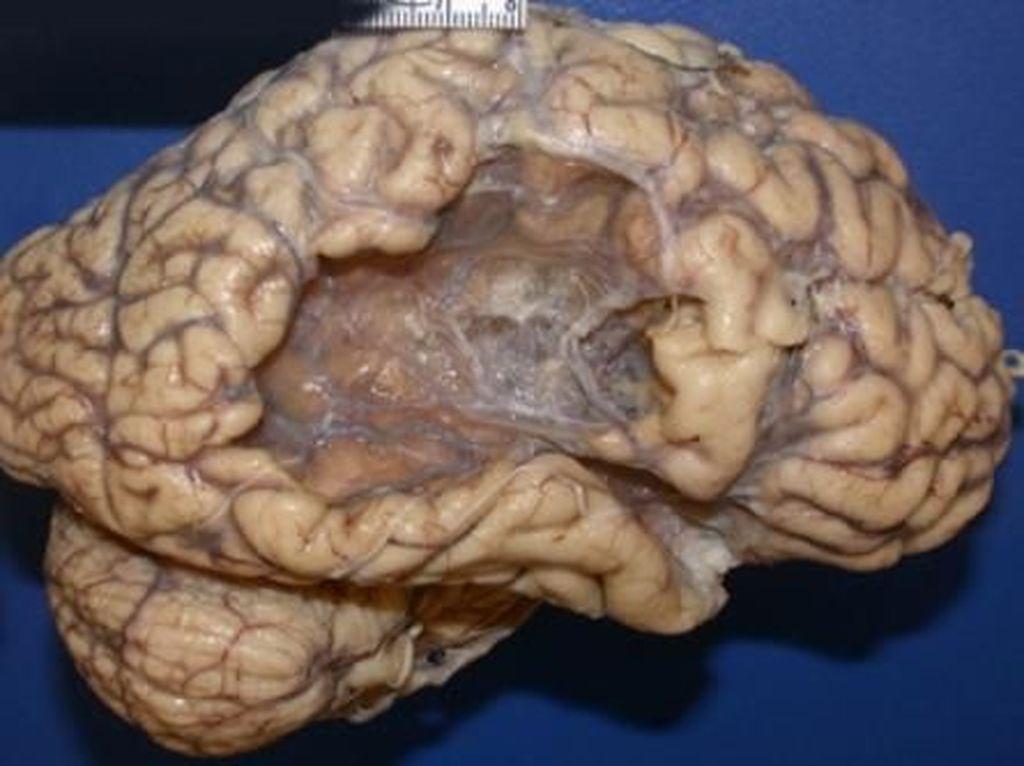Mau Tahu Seperti Apa Otak yang Kena Stroke? Begini Penampakannya