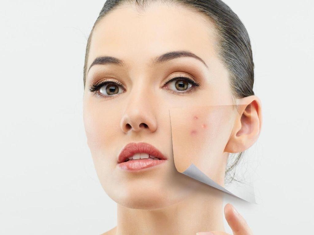 Kata Dokter Soal Cara Atasi Wajah Berjerawat dan Pori-pori Besar