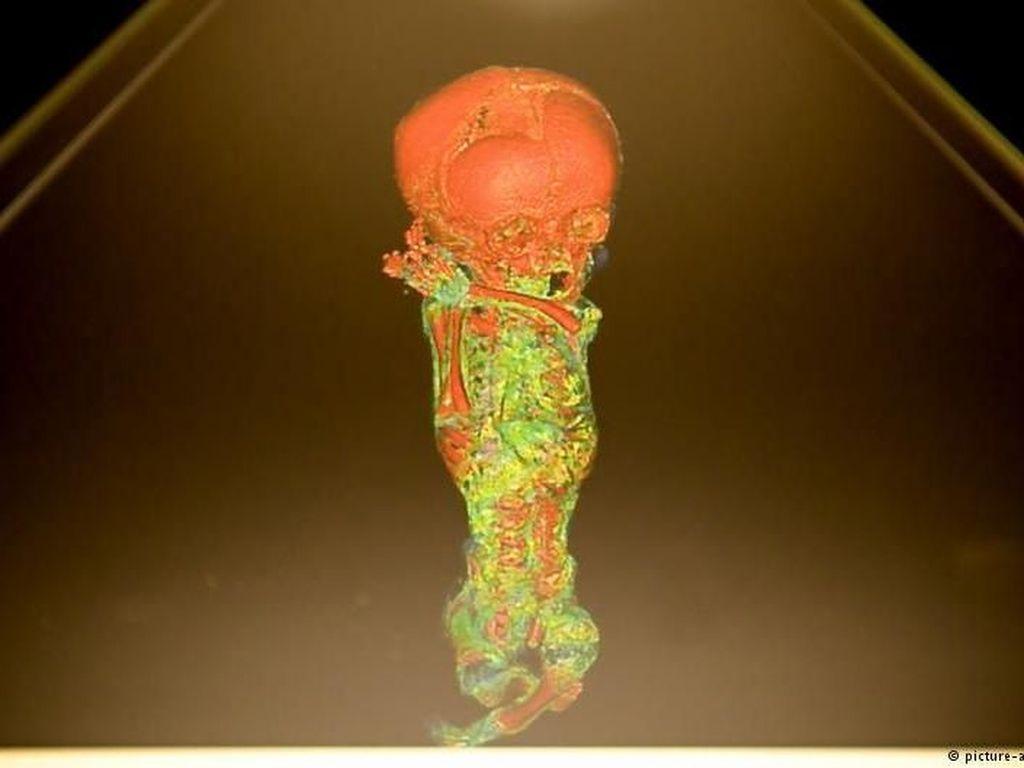 Hologram di Museum Jerman Ungkap Misteri di Balik Mumi
