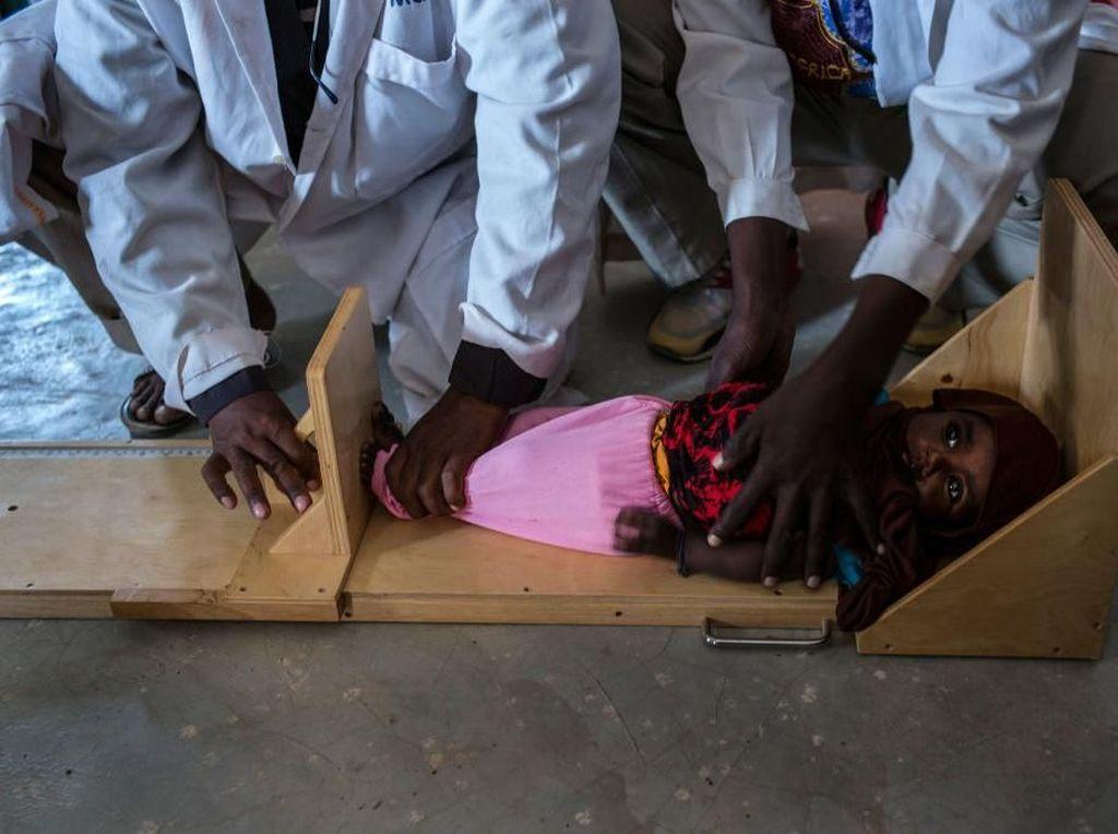 Potret Miris Anak-anak Malnutrisi dan Stunting di Seluruh Dunia