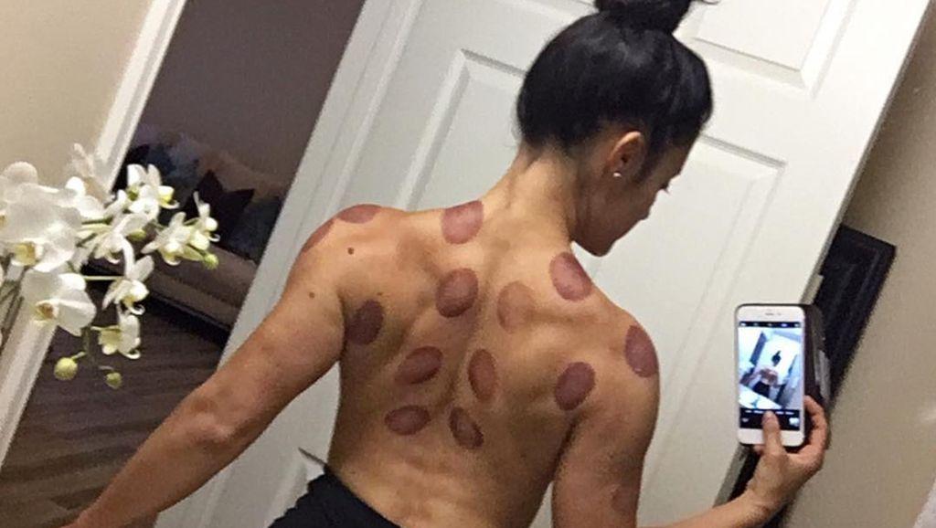 Foto: Jessica Arevalo, Bodybuilder Cantik yang Doyan Bekam