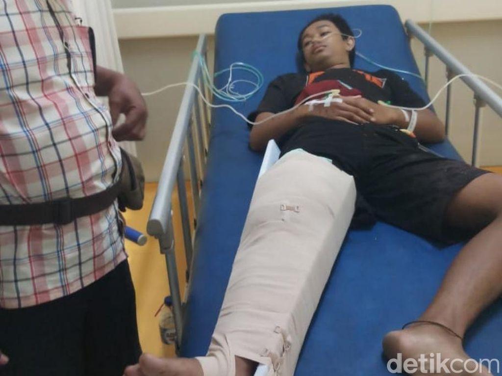 Pulang Nonton Dangdut, 2 Remaja di Pasuruan Dilempar Bom Bondet