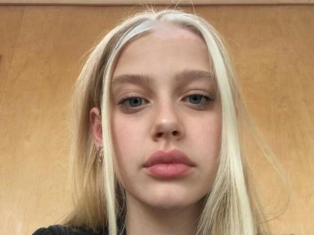 Foto: Rambut Wanita Ini Terlihat Keren, Ternyata Alami Kelainan Genetik