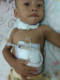 Kondisi Fariz yang mengenakan gastric catheter.