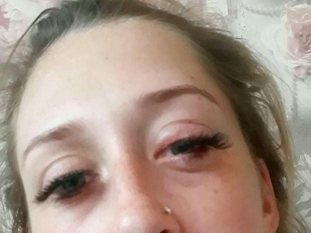 Gara-gara Extension Bulu Mata Jelang Lahiran, Wanita Ini Nyaris Buta