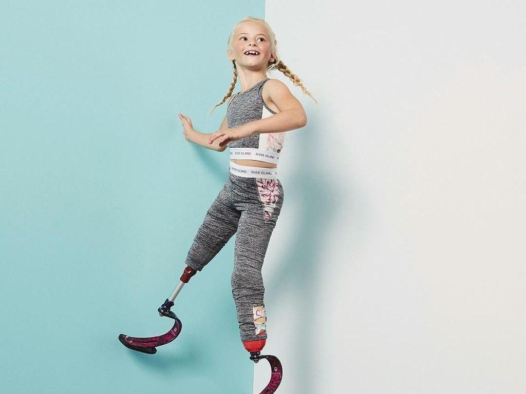 Ini Daisy-May, Model Cilik Tanpa Dua Kaki yang Curi Perhatian Dunia