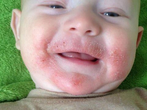 Kenali Dermatitis Atopik yang Bikin Kulit Bayi Gatal/