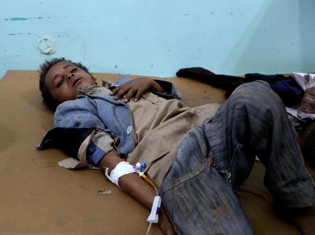 Serangan di Yaman Tewaskan 29 Anak, PBB dan AS Desak Penyelidikan