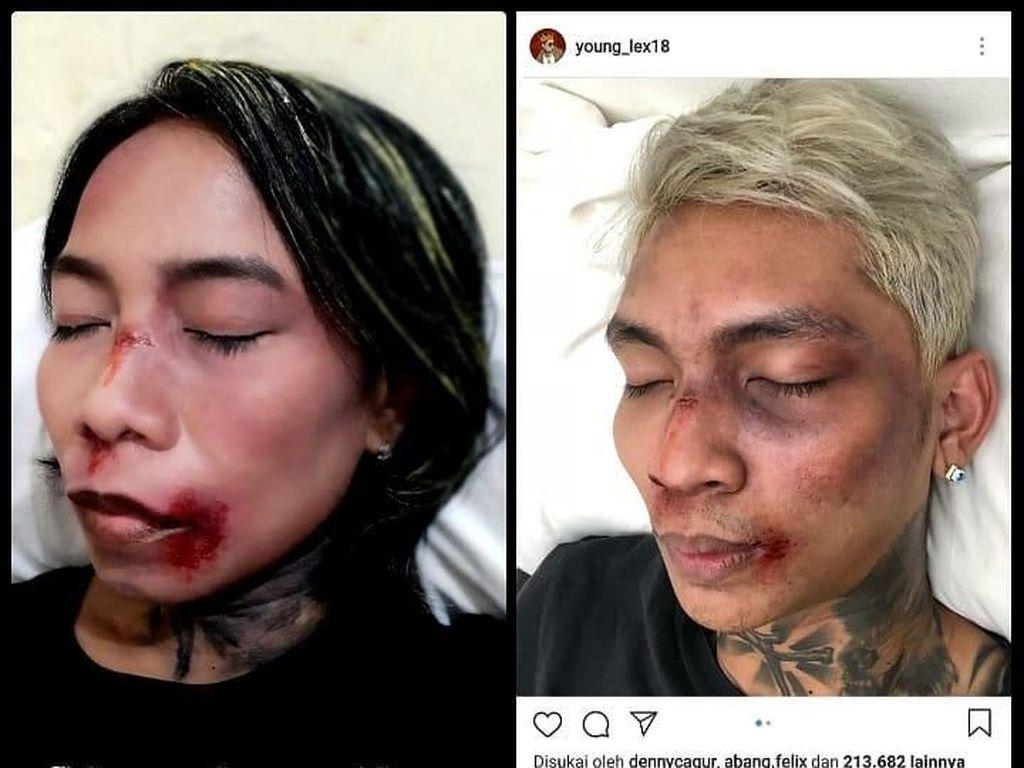 Dibully Netizen, Young Lex Senang Ada Banyak Meme Wajah Babak Belurnya