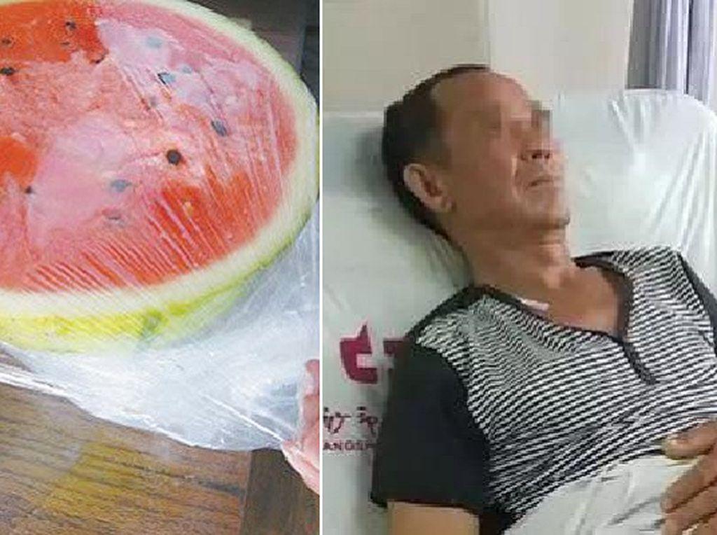 Waduh! Karena Makan Semangka dari Kulkas, Pria Ini Kena Obstruksi Usus