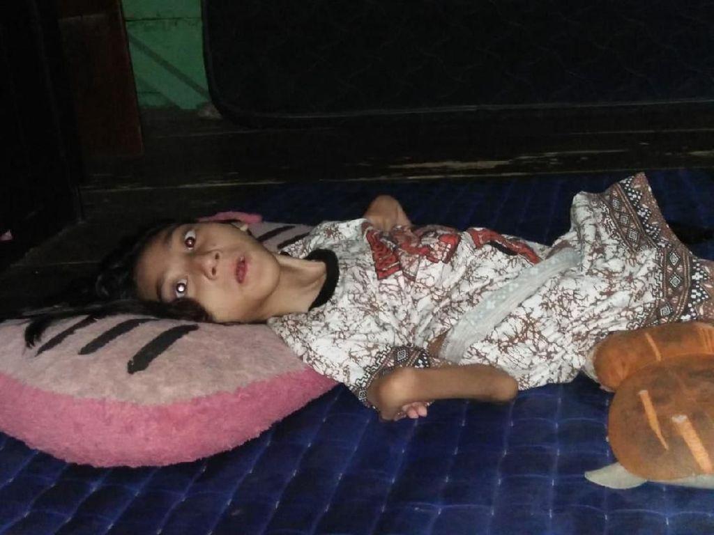 11 Tahun Lumpuh, Anak di Jambi Ini Butuh Uluran Tangan